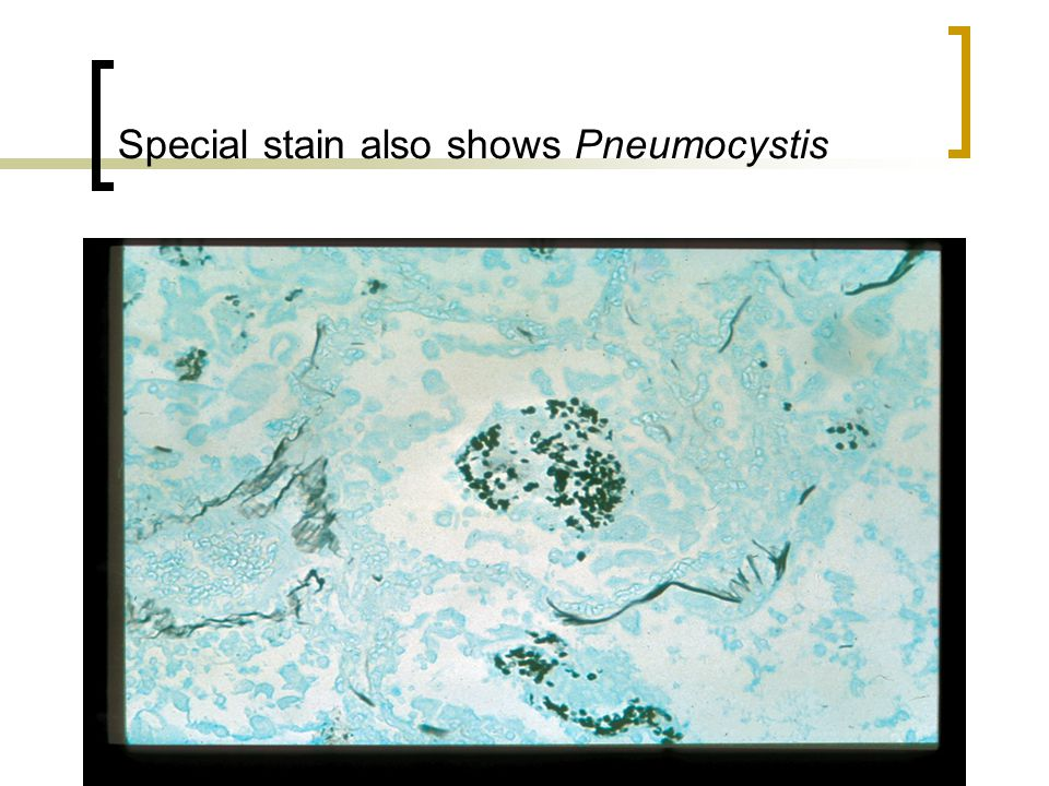 Special stain also shows Pneumocystis
