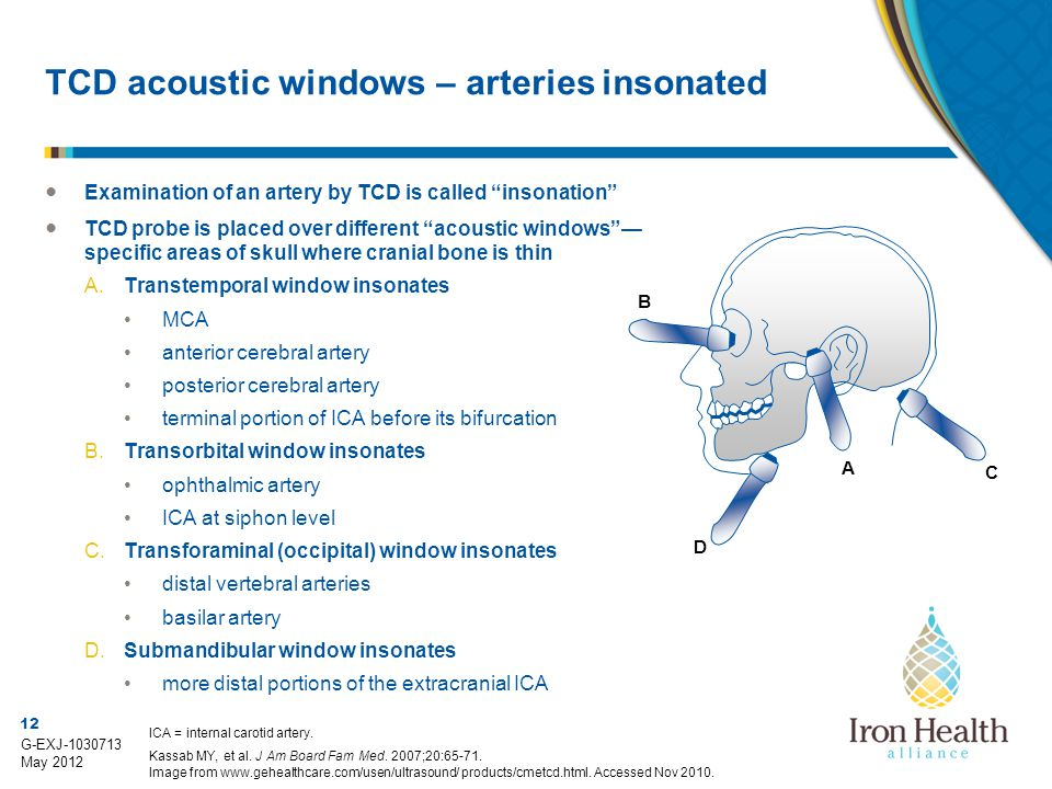 TCD acoustic windows – arteries insonated