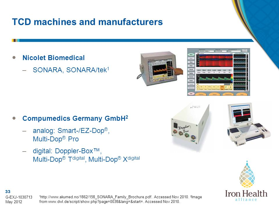 TCD machines and manufacturers
