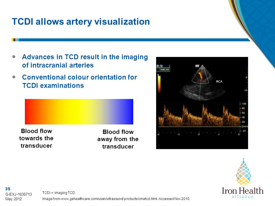 TCDI allows artery visualization