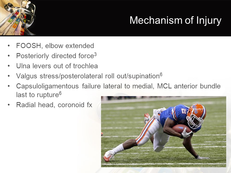 Mechanism of Injury FOOSH, elbow extended Posteriorly directed force3