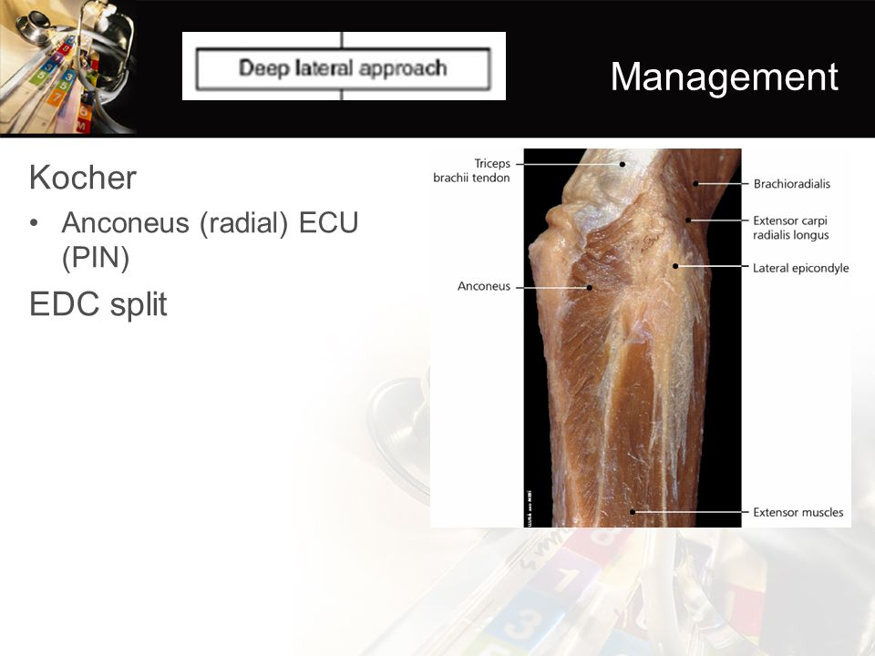 Management Kocher EDC split Anconeus (radial) ECU (PIN)