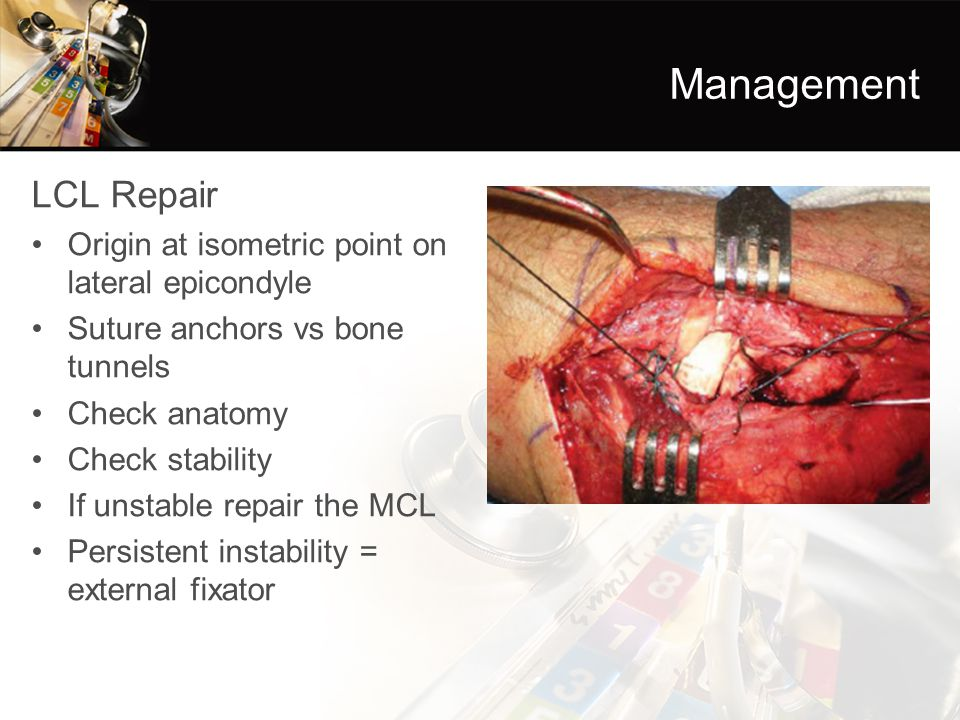 Management LCL Repair Origin at isometric point on lateral epicondyle