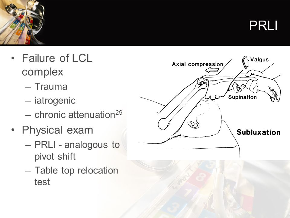PRLI Failure of LCL complex Physical exam Trauma iatrogenic