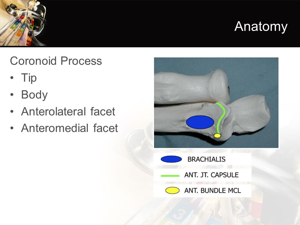 Anatomy Coronoid Process Tip Body Anterolateral facet