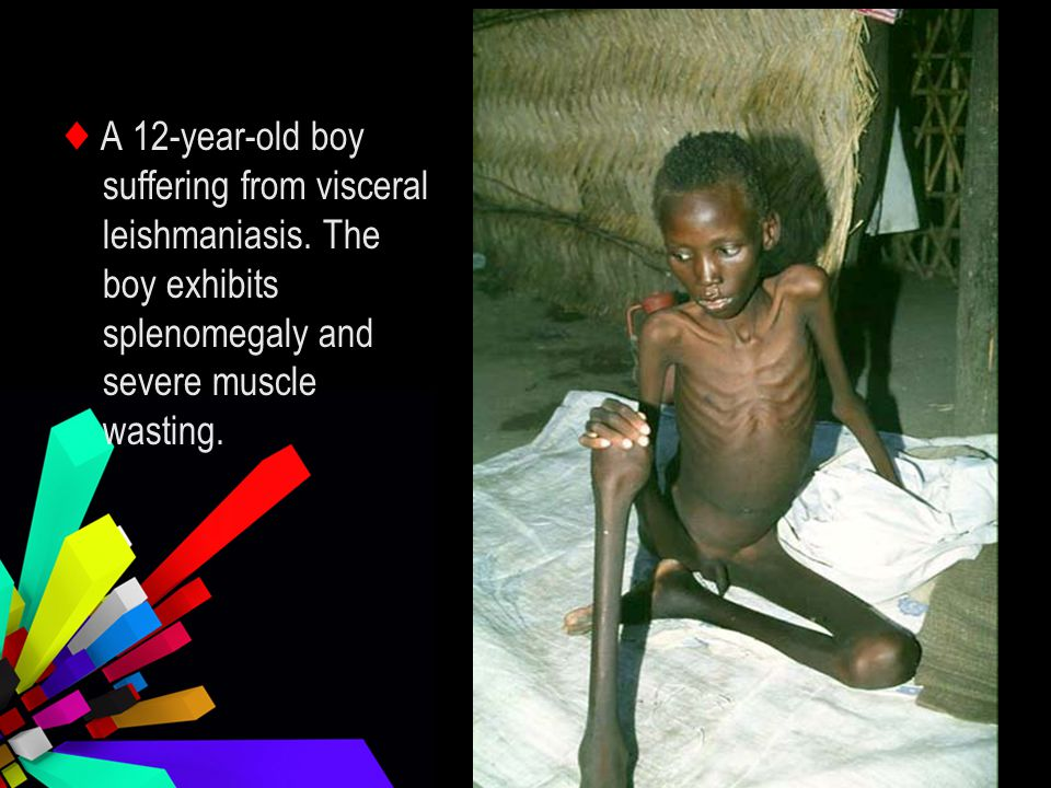 ♦ A 12-year-old boy suffering from visceral leishmaniasis