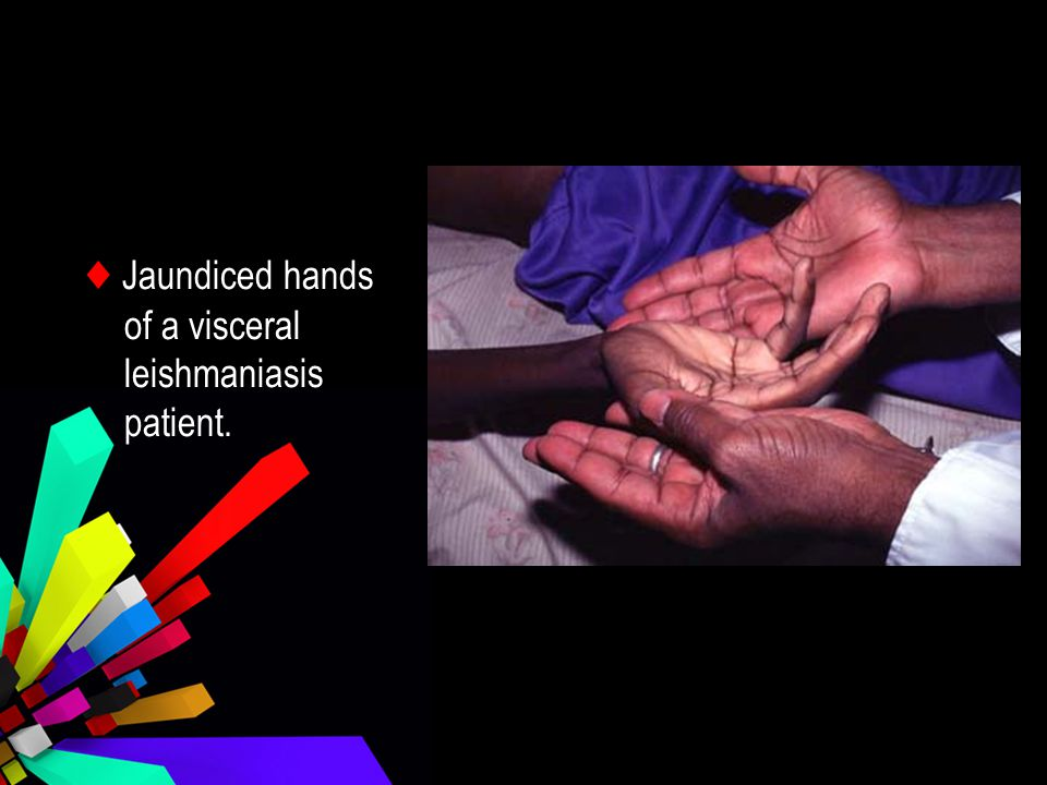 ♦ Jaundiced hands of a visceral leishmaniasis patient.
