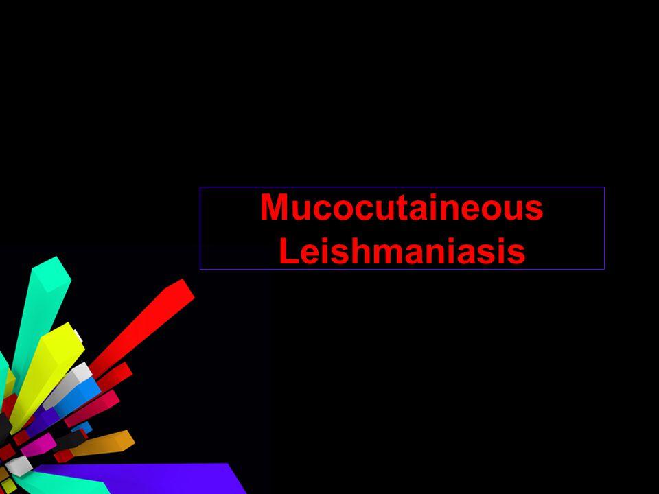 Mucocutaineous Leishmaniasis