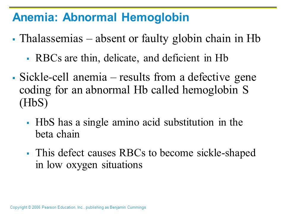 Anemia: Abnormal Hemoglobin