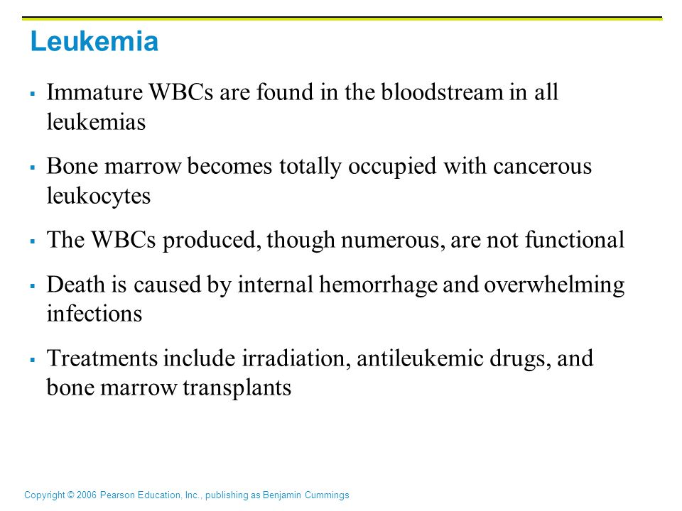 Leukemia Immature WBCs are found in the bloodstream in all leukemias