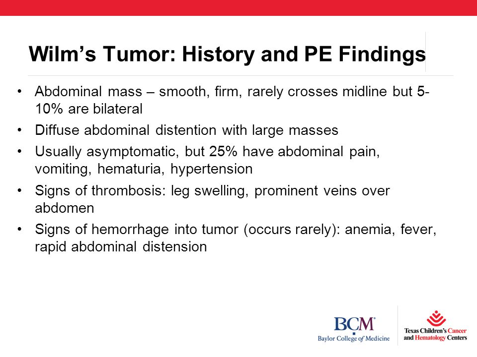 Wilm's Tumor: History and PE Findings