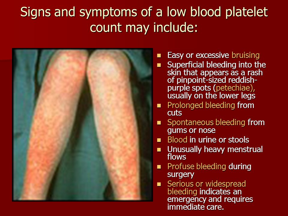 Signs and symptoms of a low blood platelet count may include: