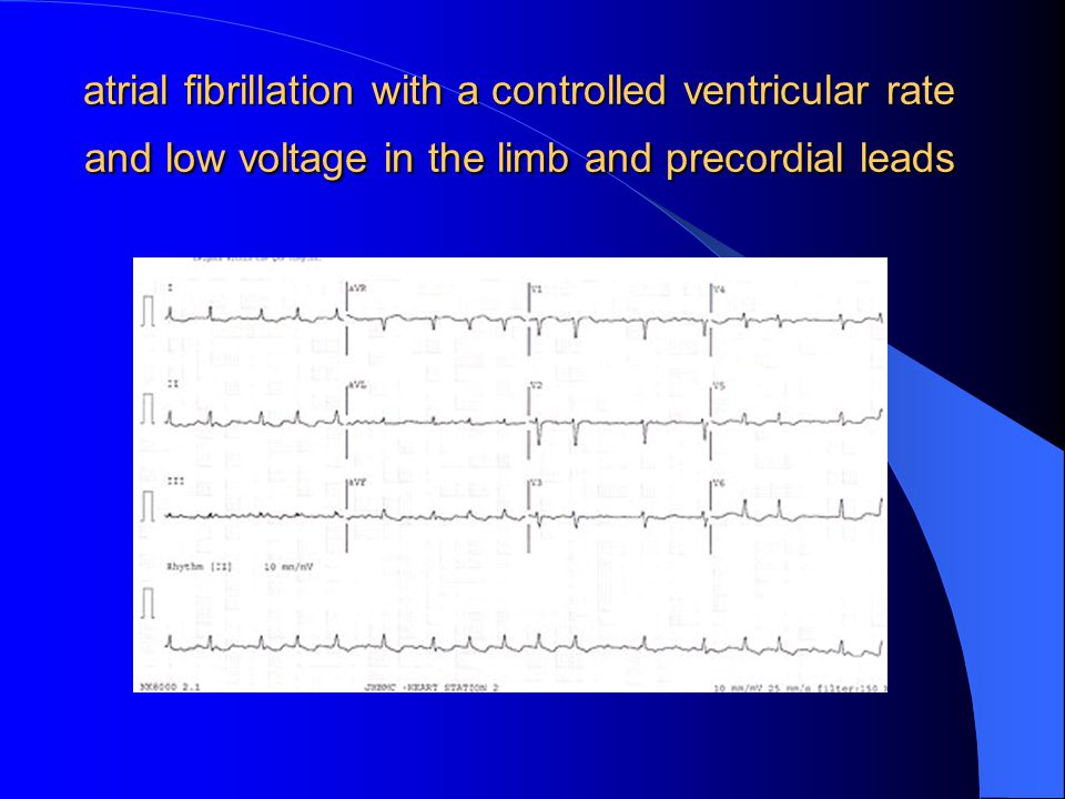 atrial fibrillation with a controlled ventricular rate and low voltage in the limb and precordial leads