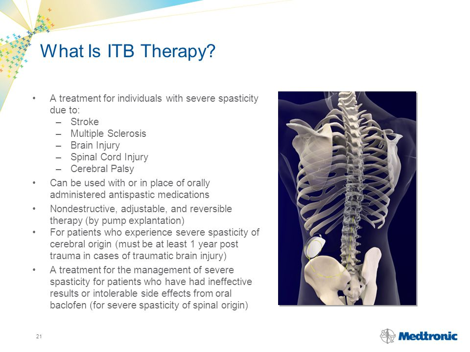 What Is ITB Therapy A treatment for individuals with severe spasticity due to: Stroke. Multiple Sclerosis.