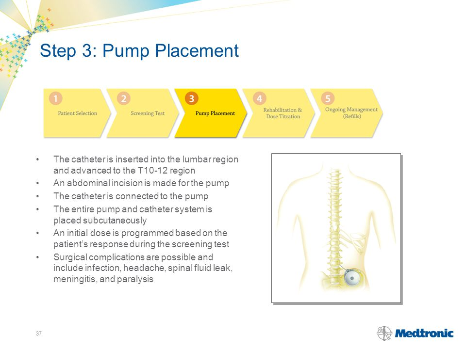 Step 3: Pump Placement The catheter is inserted into the lumbar region and advanced to the T10-12 region.