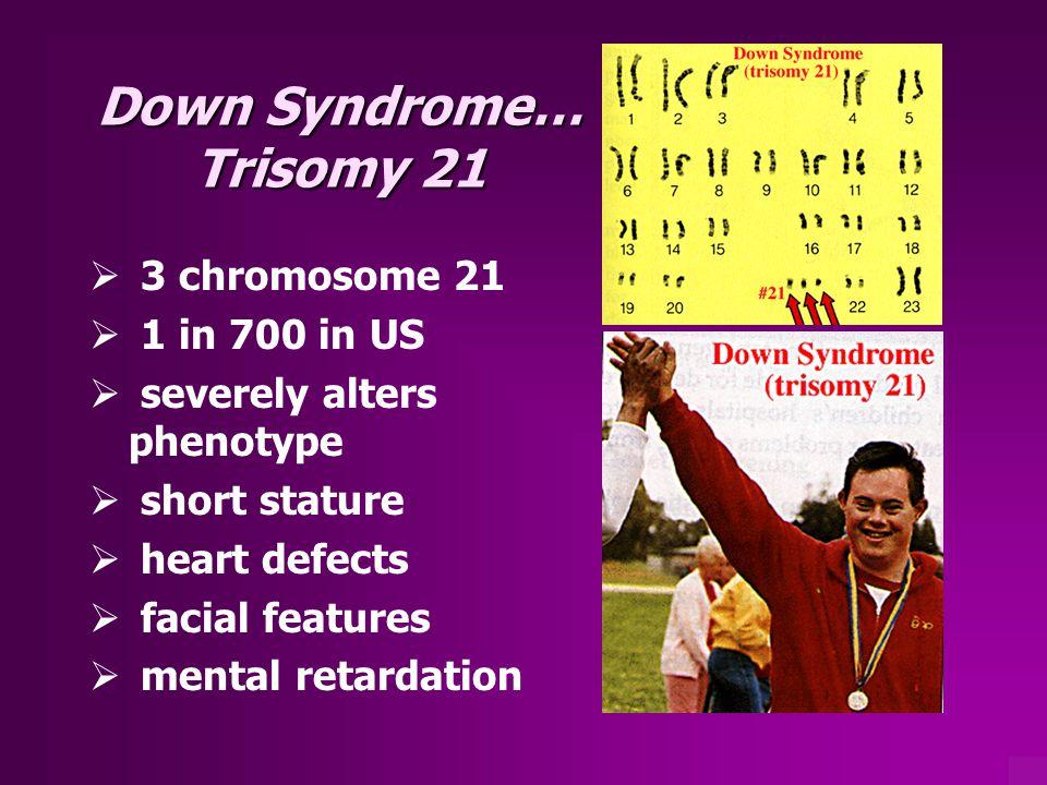 Down Syndrome… Trisomy 21