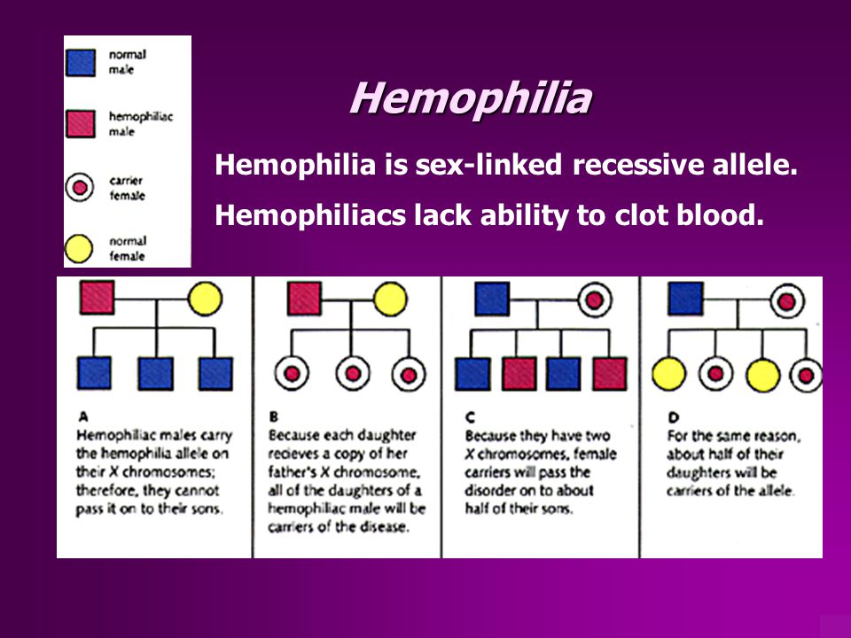 Hemophilia Hemophilia is sex-linked recessive allele.