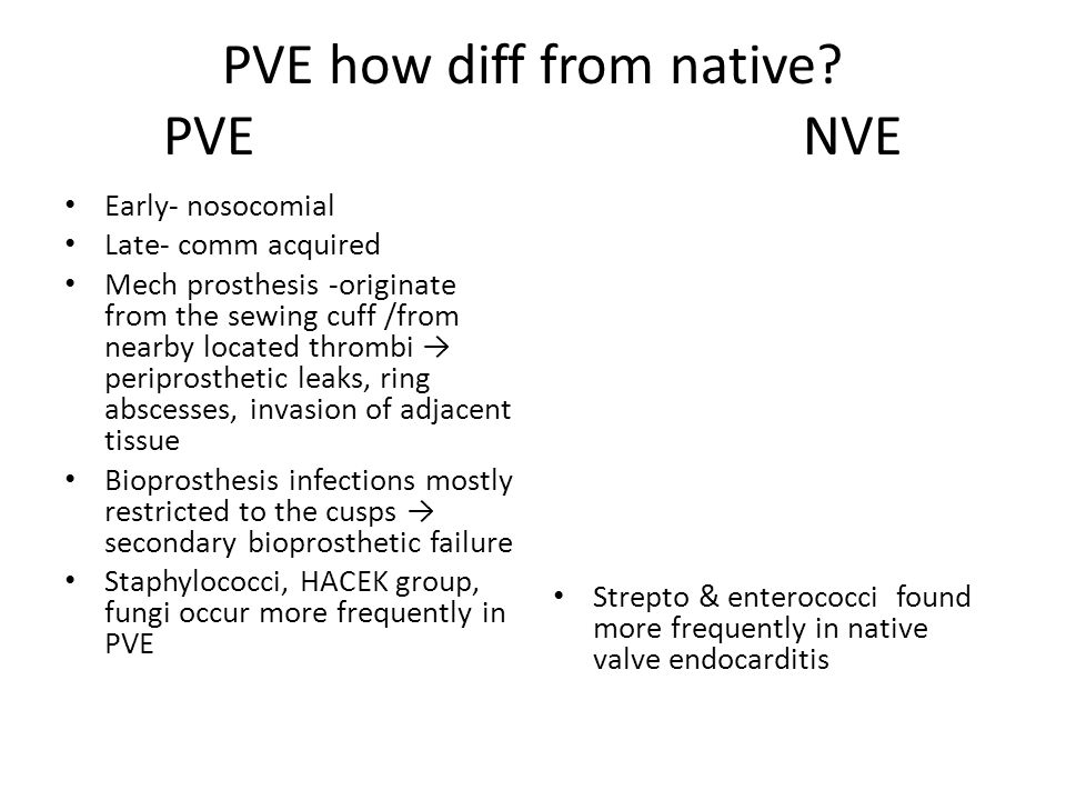PVE how diff from native PVE NVE