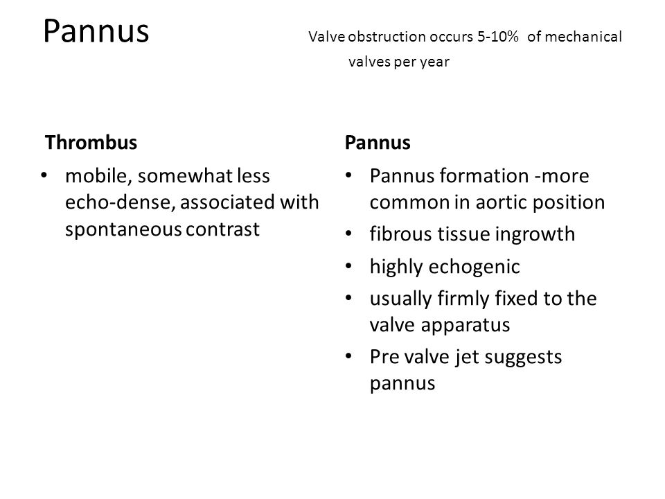Pannus Valve obstruction occurs 5-10% of mechanical valves per year