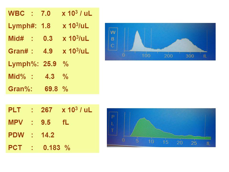 WBC : 7.0 x 103 / uL Lymph#: 1.8 x 103/uL. Mid# : 0.3 x 103/uL. Gran# : 4.9 x 103/uL.