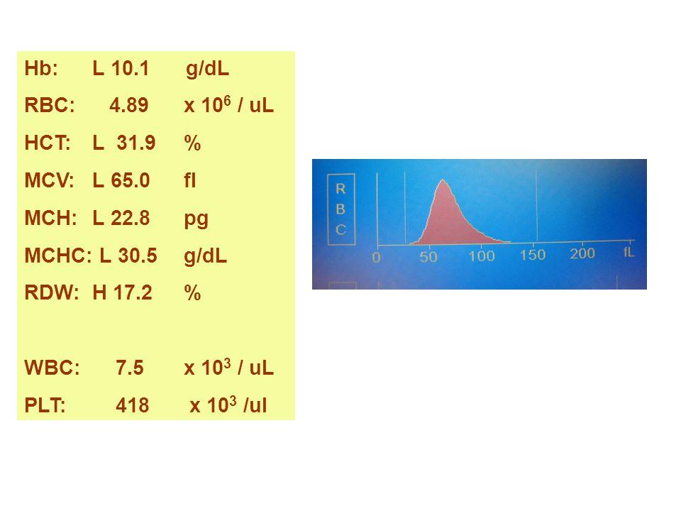Hb: L 10.1 g/dL RBC: 4.89 x 106 / uL. HCT: L 31.9 % MCV: L 65.0 fl. MCH: L 22.8 pg.