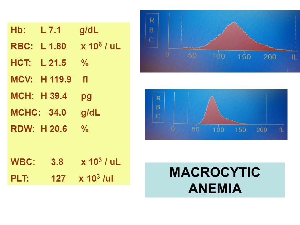 MACROCYTIC ANEMIA Hb: L 7.1 g/dL RBC: L 1.80 x 106 / uL HCT: L 21.5 %