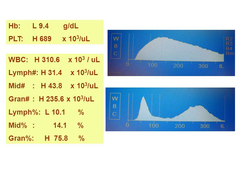 Hb: L 9.4 g/dL PLT: H 689 x 103/uL. WBC: H 310.6 x 103 / uL. Lymph#: H 31.4 x 103/uL.