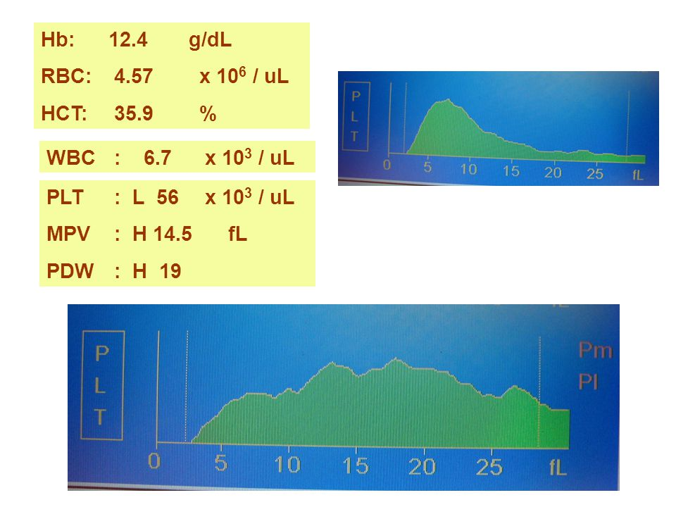 Hb: 12.4 g/dL RBC: 4.57 x 106 / uL. HCT: 35.9 % WBC : 6.7 x 103 / uL. PLT : L 56 x 103 / uL.