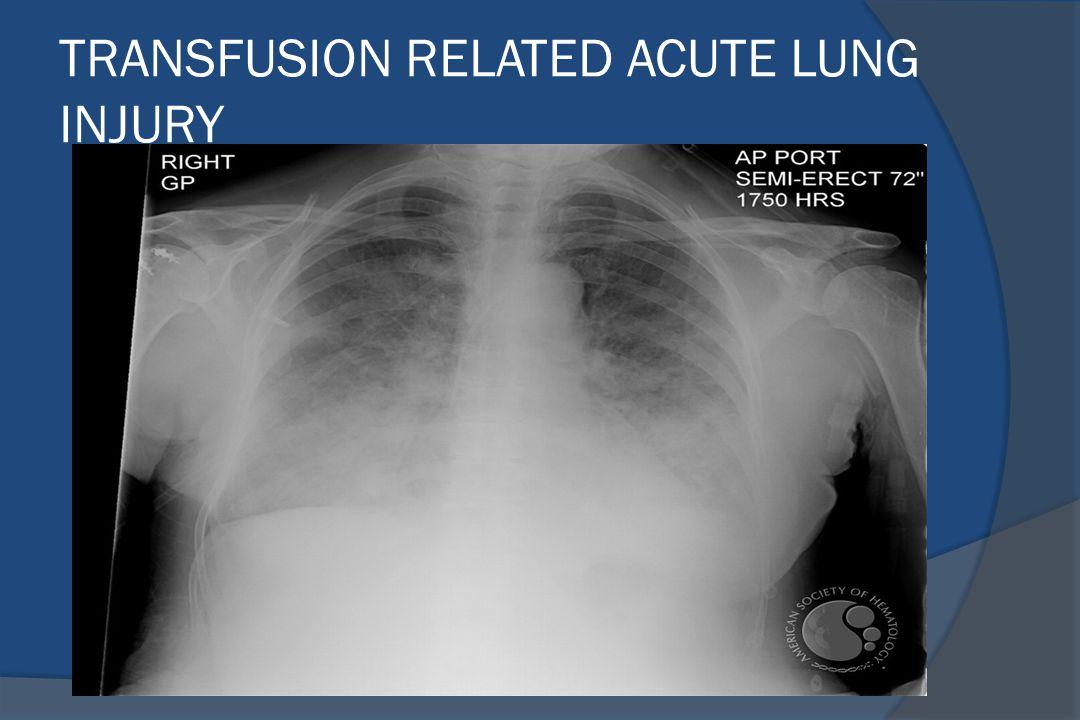 TRANSFUSION RELATED ACUTE LUNG INJURY