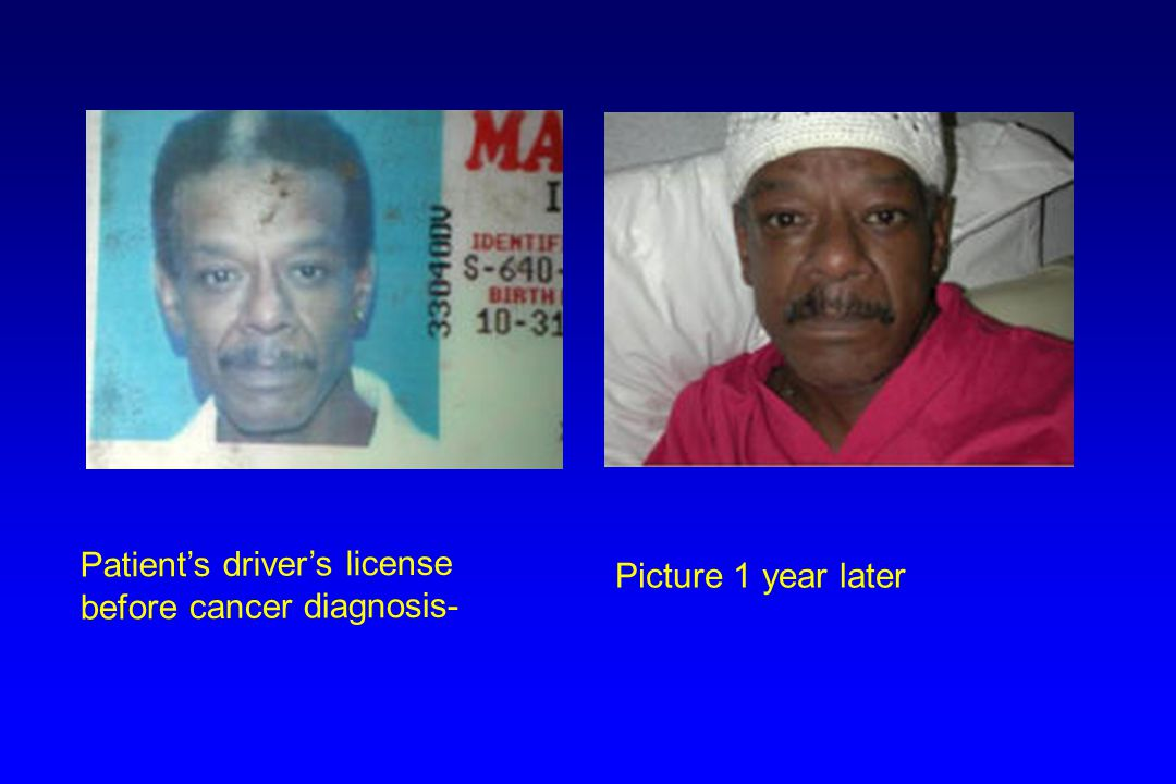Patient's driver's license before cancer diagnosis-