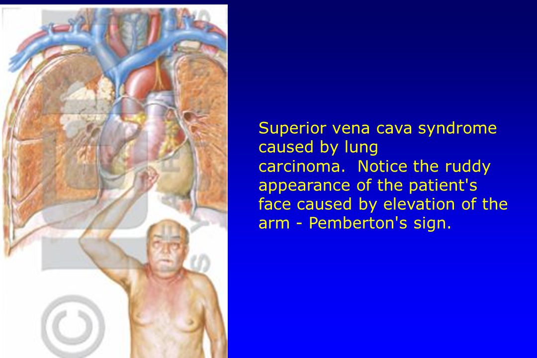 Superior vena cava syndrome caused by lung carcinoma