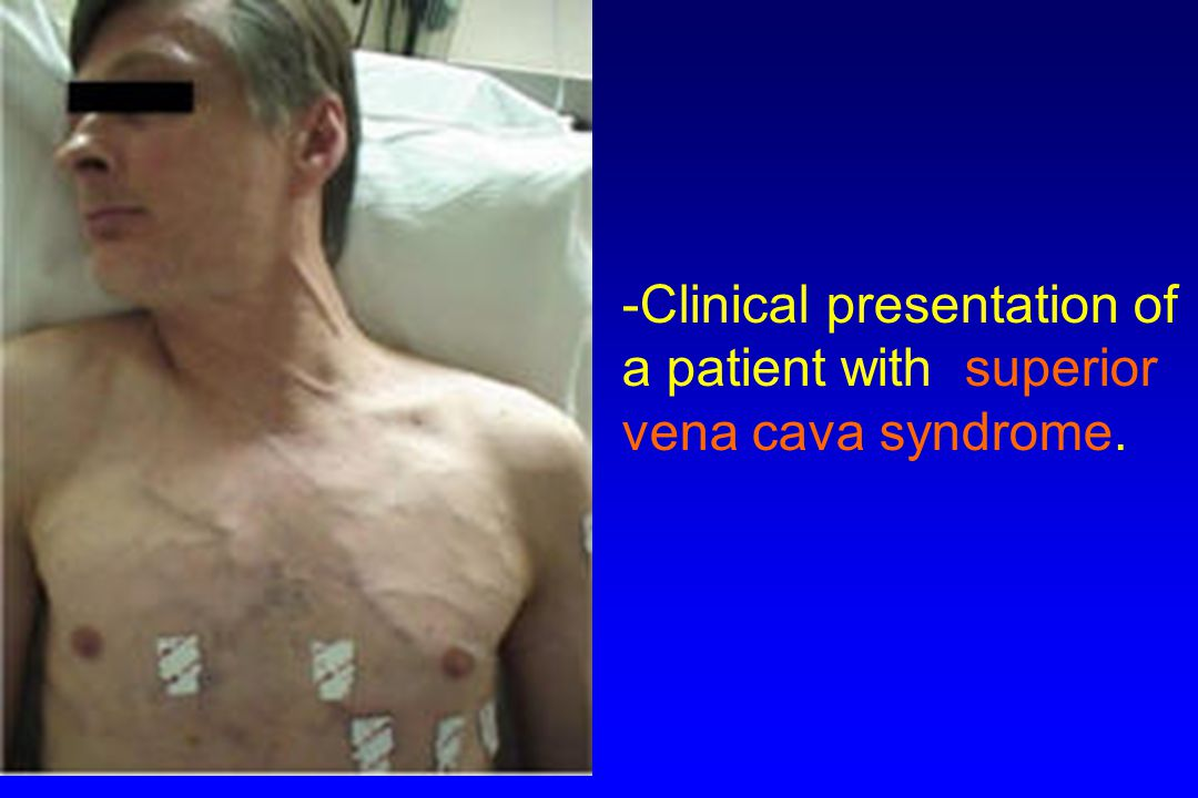 Clinical presentation of a patient with superior vena cava syndrome.