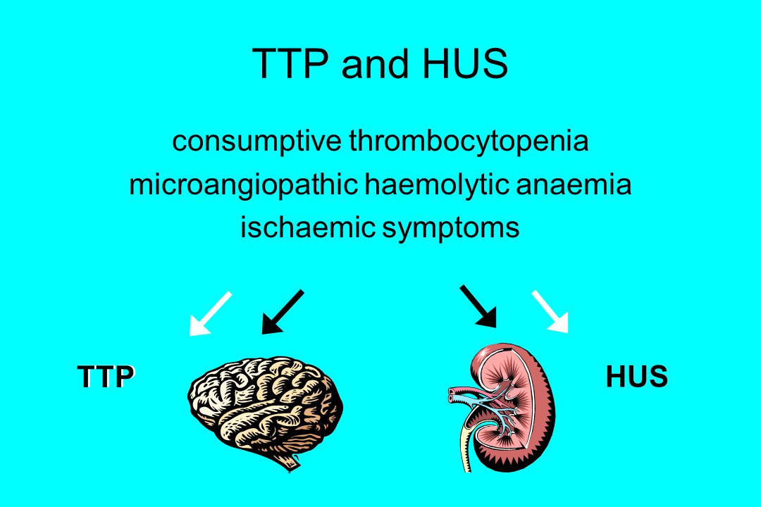 TTP and HUS consumptive thrombocytopenia