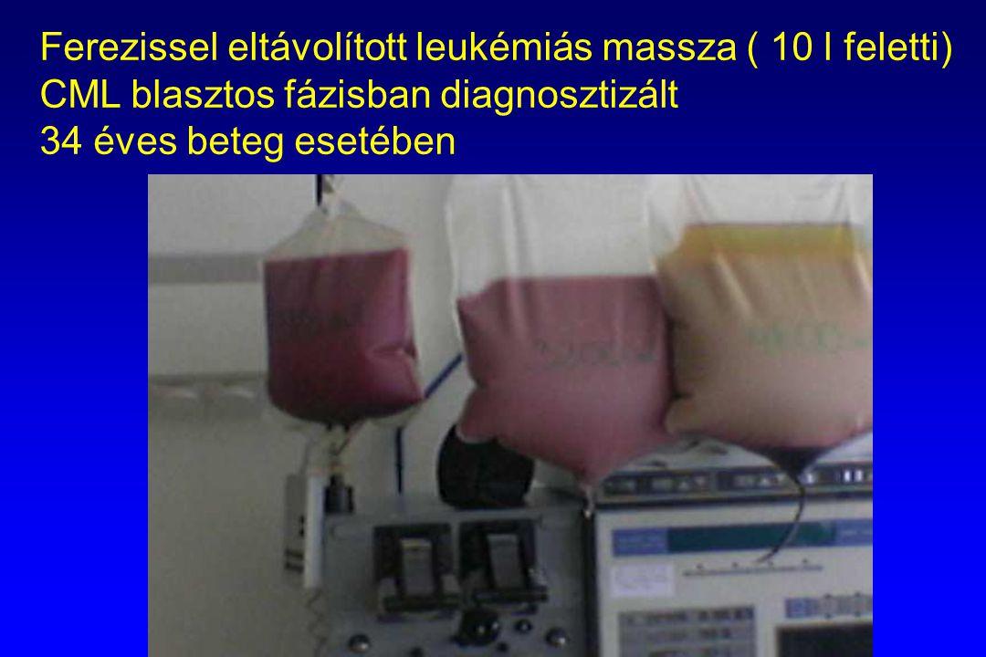 Ferezissel eltávolított leukémiás massza ( 10 l feletti)