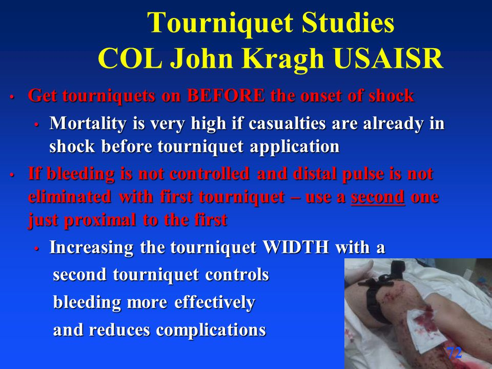 Tourniquet Studies COL John Kragh USAISR