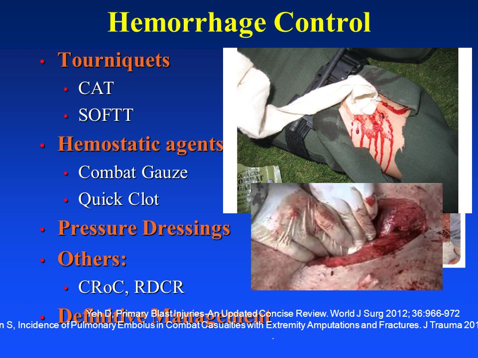 Hemorrhage Control Tourniquets Hemostatic agents Pressure Dressings