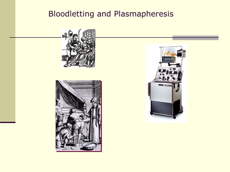 Bloodletting and Plasmapheresis