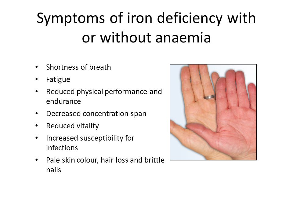 Symptoms of iron deficiency with or without anaemia