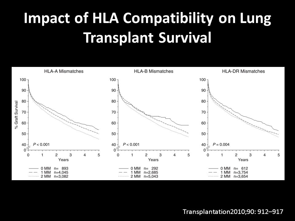 Impact of HLA Compatibility on Lung Transplant Survival