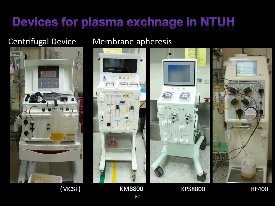 Devices for plasma exchnage in NTUH