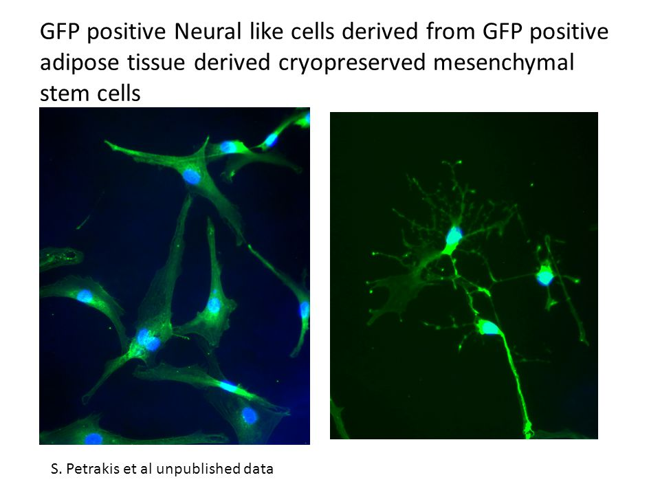 GFP positive Neural like cells derived from GFP positive adipose tissue derived cryopreserved mesenchymal stem cells