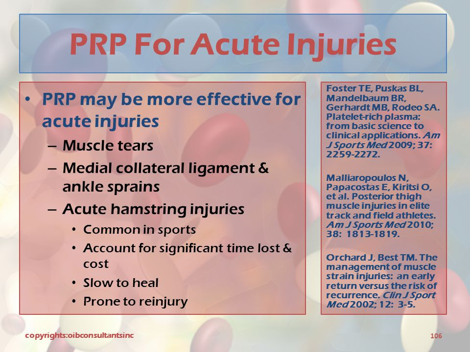 PRP For Acute Injuries PRP may be more effective for acute injuries