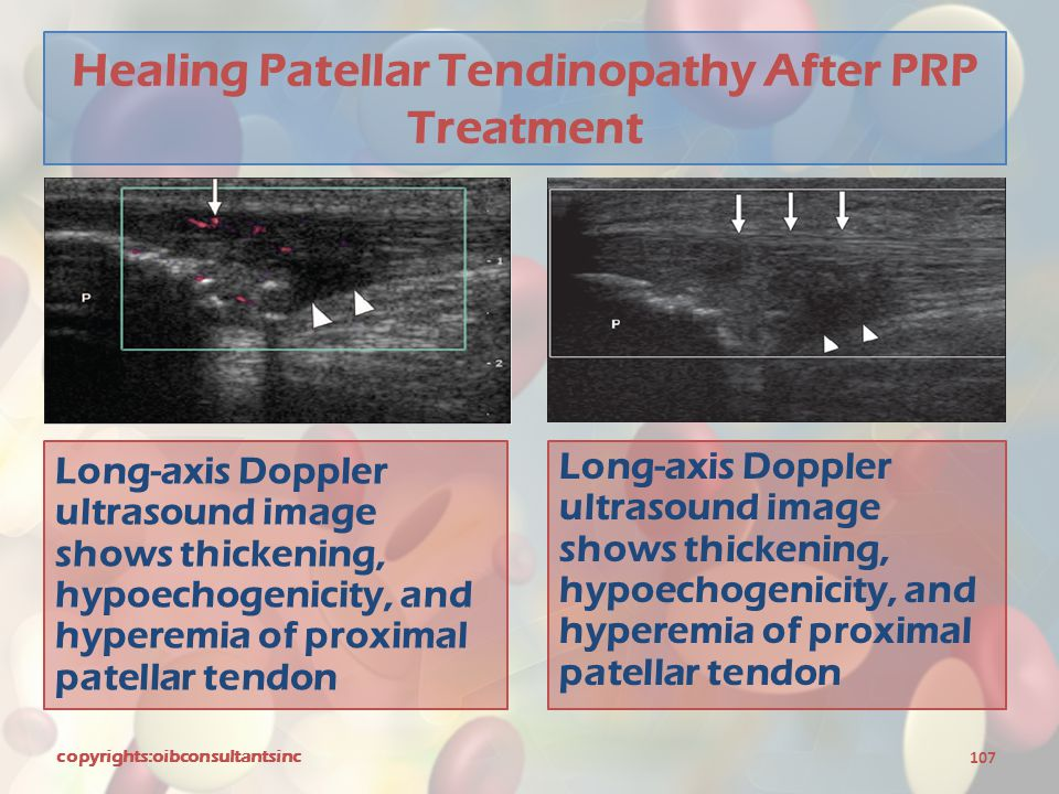 Healing Patellar Tendinopathy After PRP Treatment
