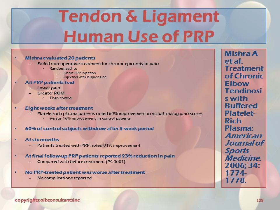 Tendon & Ligament Human Use of PRP