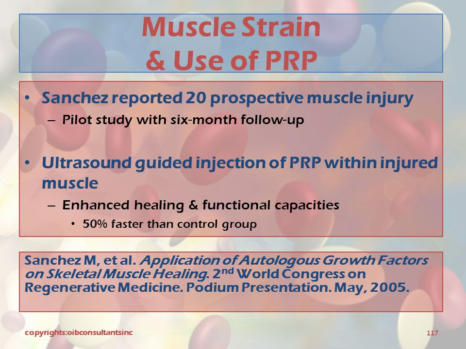 Muscle Strain & Use of PRP