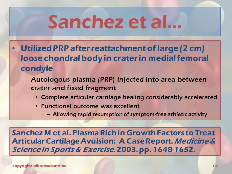 Sanchez et al… Utilized PRP after reattachment of large (2 cm) loose chondral body in crater in medial femoral condyle.