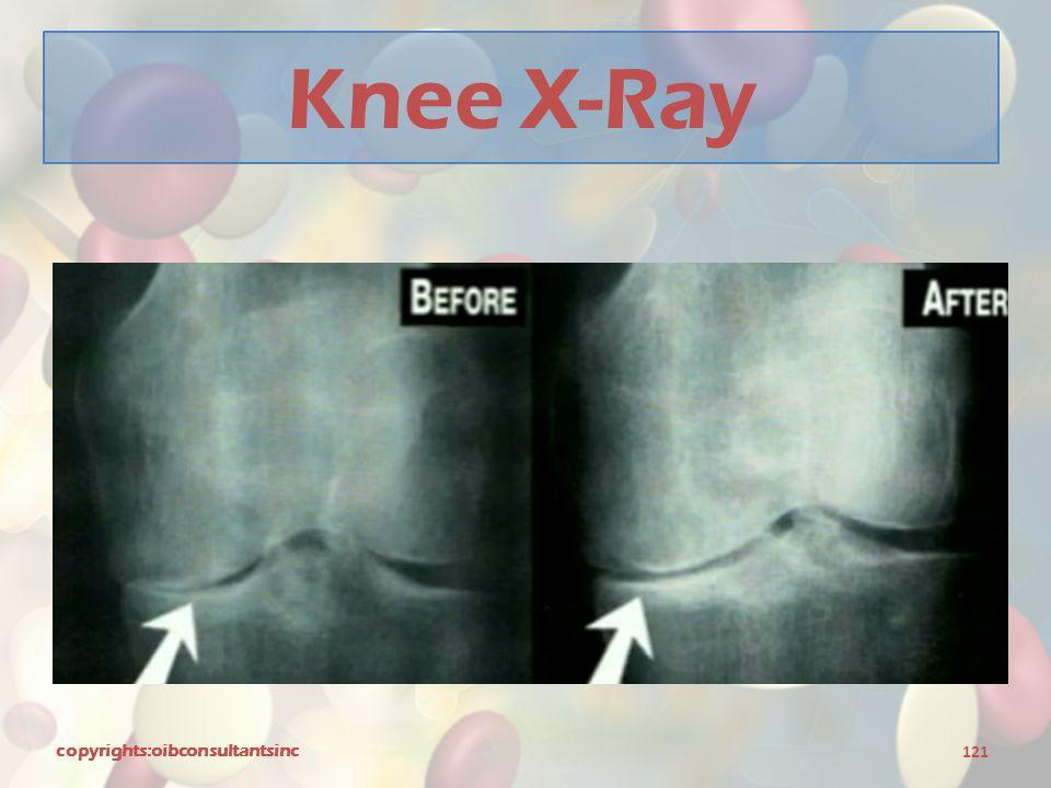 Knee X-Ray copyrights:oibconsultantsinc