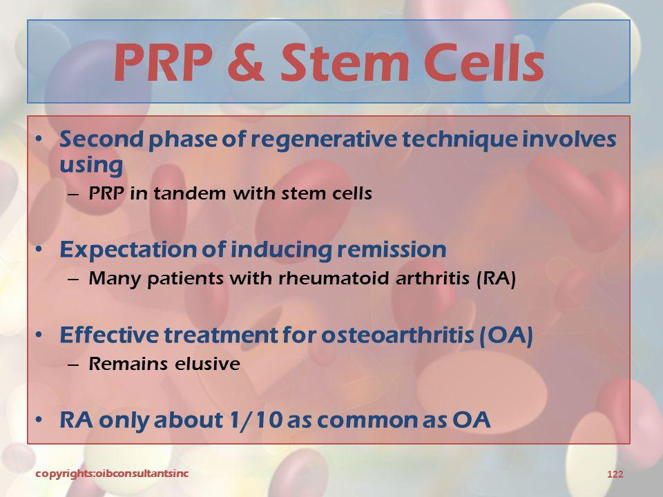 PRP & Stem Cells Second phase of regenerative technique involves using