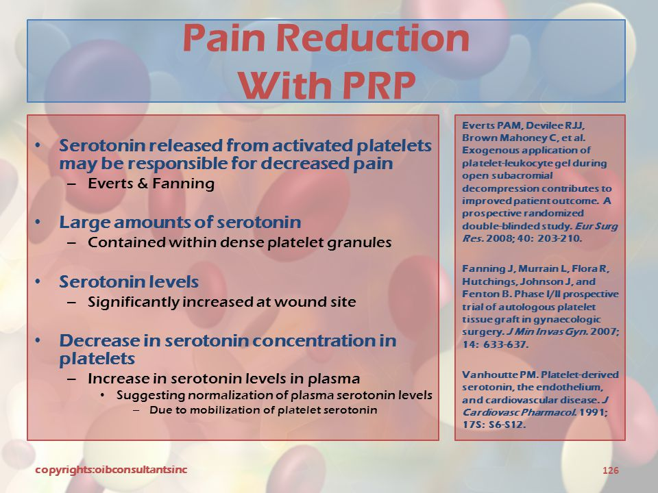 Pain Reduction With PRP
