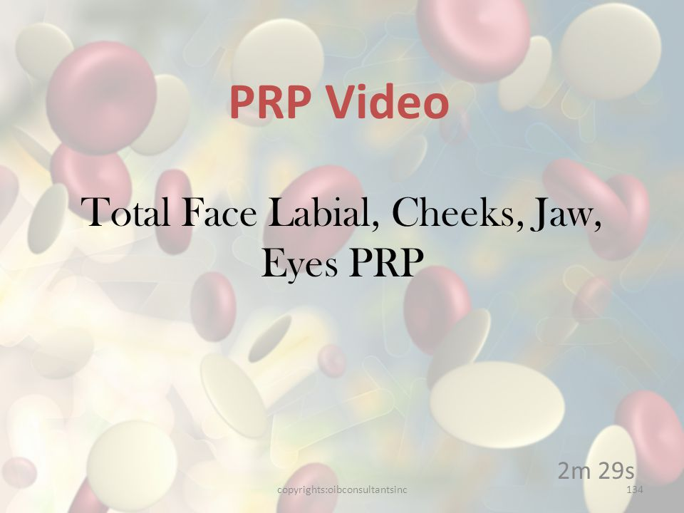 Total Face Labial, Cheeks, Jaw, Eyes PRP